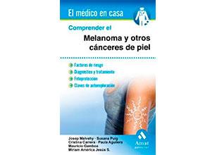 Comprender el melanoma y otros cánceres de piel