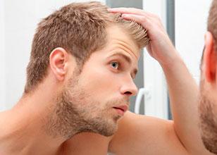 5 opciones para tratar la alopecia