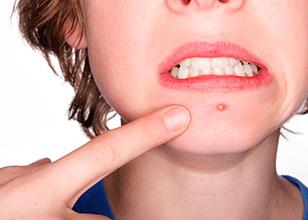 Nuevo estudio sobre el acné