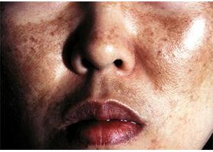 Causas de la aparición de la hiperpigmentación