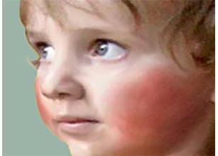 Sarpullidos y afecciones de la piel