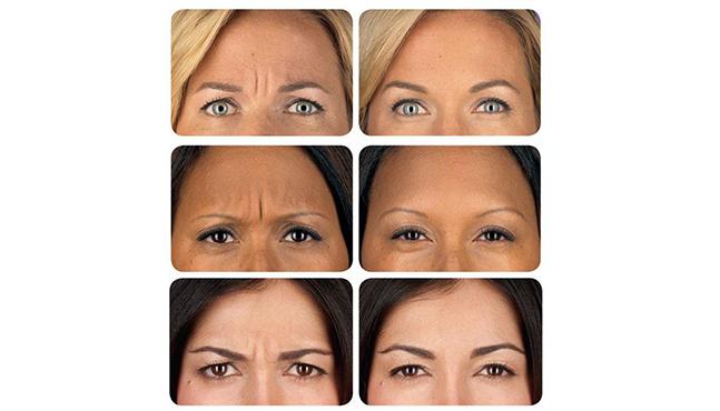Caso Clínico Terapia regenerativa con plasma rico en plaquetas para el rejuvenecimiento facial