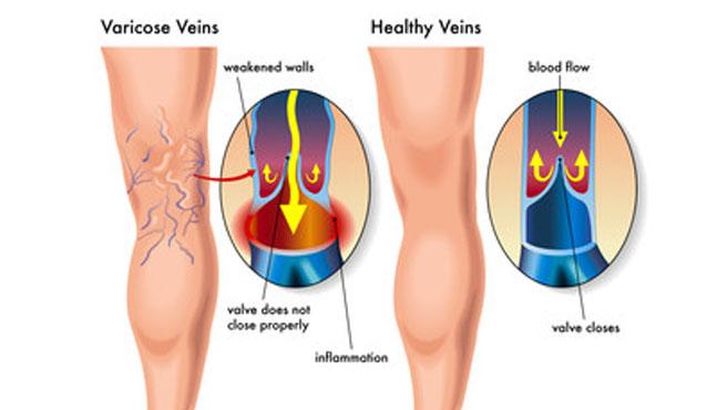 Várices en las piernas, por qué salen y cómo tratarlas