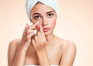 Los errores que cometes con tus marcas de acné (y cómo solucionarlos)