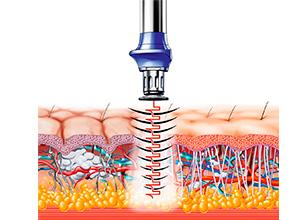 X-Wave, la nueva forma de mantener a raya la celulitis