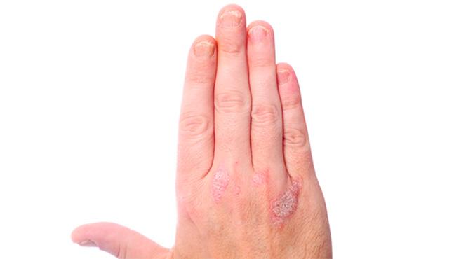 Psoriasis: 7 lugares más comunes  donde puede aparecer.