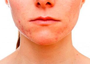 Las 9 formas más rápidas de quitar las cicatrices causadas por el Acné