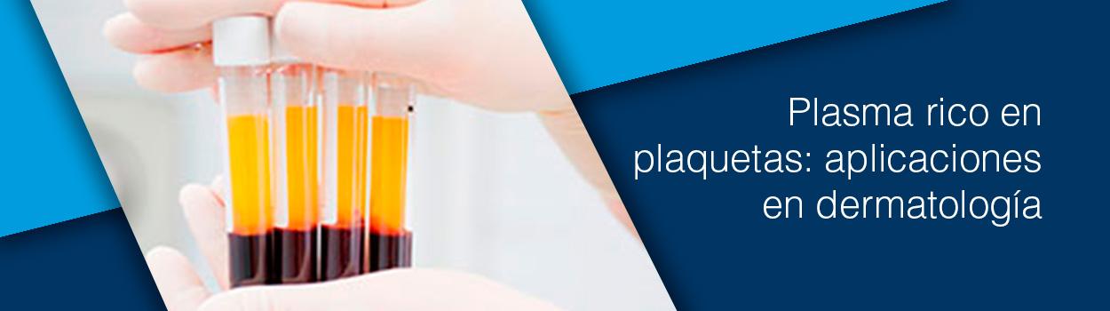 Plasma rico en plaquetas: aplicaciones en dermatología