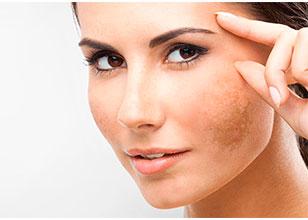 Tratamiento Cosmetológico del Melasma