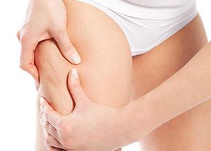 Dra. Elia Roo, Celulitis: tipos y prevención