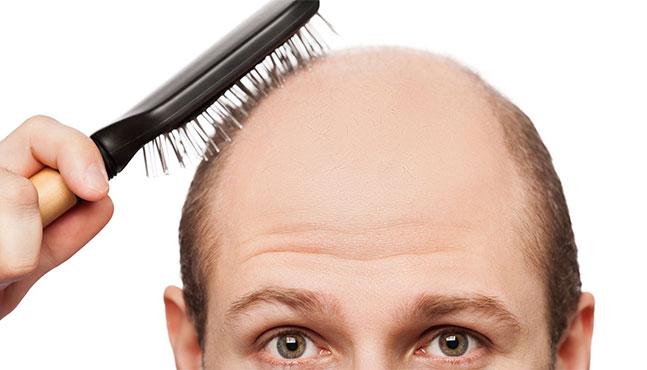 inyeccion-de-celulas-madre-para-curar-la-alopecia