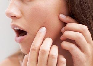 relacion-entre-acne-y-estres