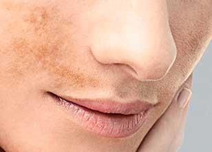 Cambios en la pigmentación de la piel durante el embarazo